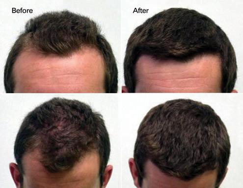 Hair Restoration Maffi Clinics Skin Care Treatments For Men